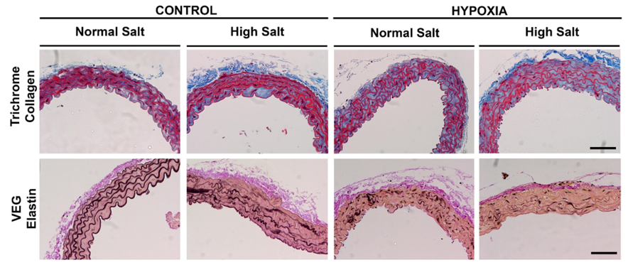 Microphotographs of aortic sections in mouse offspring exposed to prenatal hypoxia and a high salt diet and appropriate controls