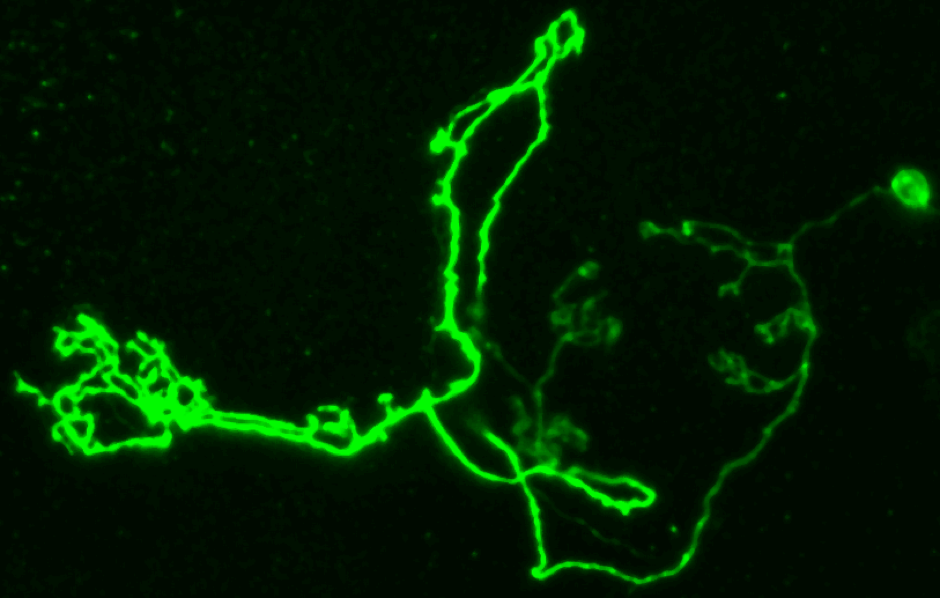 Clones of mushroom body neurons in the Drosophila central brain generated using mosaic analysis with a repressible cell marker (MARCM).