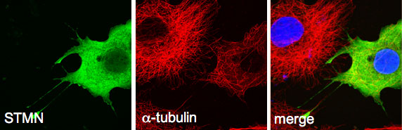 STMN has microtubule destabilizing activity